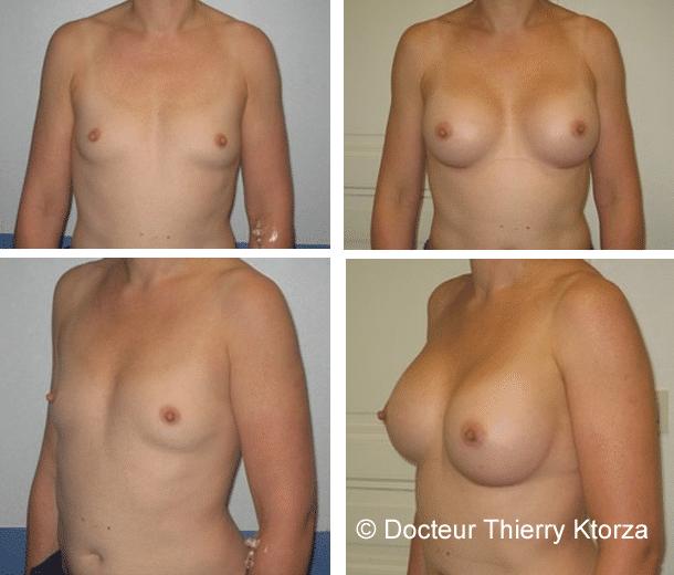 Photos avant et après une augmentation mammaire 300CC par voie sous mammaire en avant du muscle