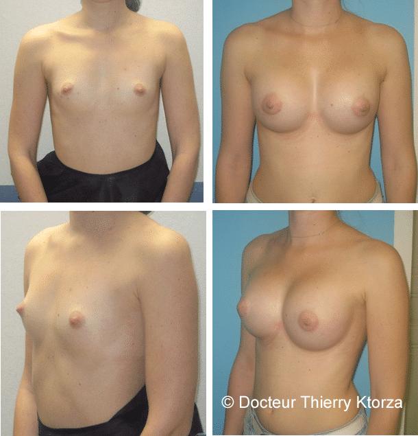 Photo avant et après une augmentation mammaire par implants mammaires de 325cc mis par voie periaréolaire en arrière du muscle