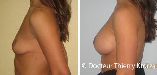 Photo d'une augmentation mammaire de 325 CC suite à une ptôse mammaire
