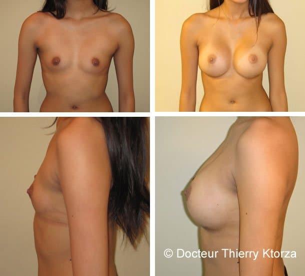 augmentation-mammaire-335cc-dual-plan