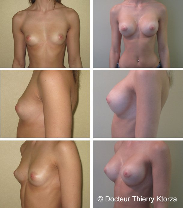 Photo avant et après augmentation mammaire par implants ronds de 350ml posés par voie périaréolaire en position retromusculaire