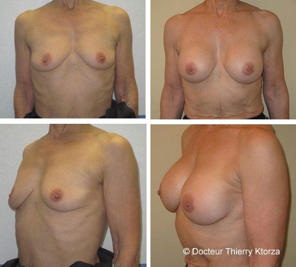 Photo d'une augmentation mammaire chez une personne âgée