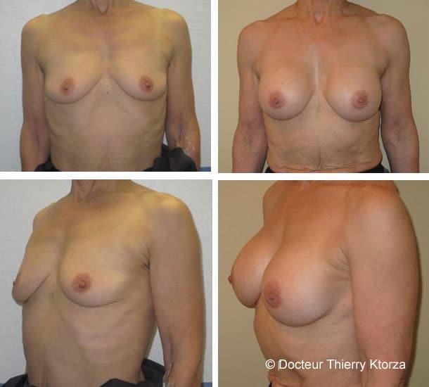Pose d'implants mammaires et âge