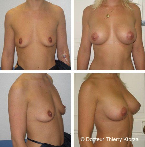 Augmentation mammaire par prothèses mammaires rondes à profil modéré de 325cc en position retromusculaire.