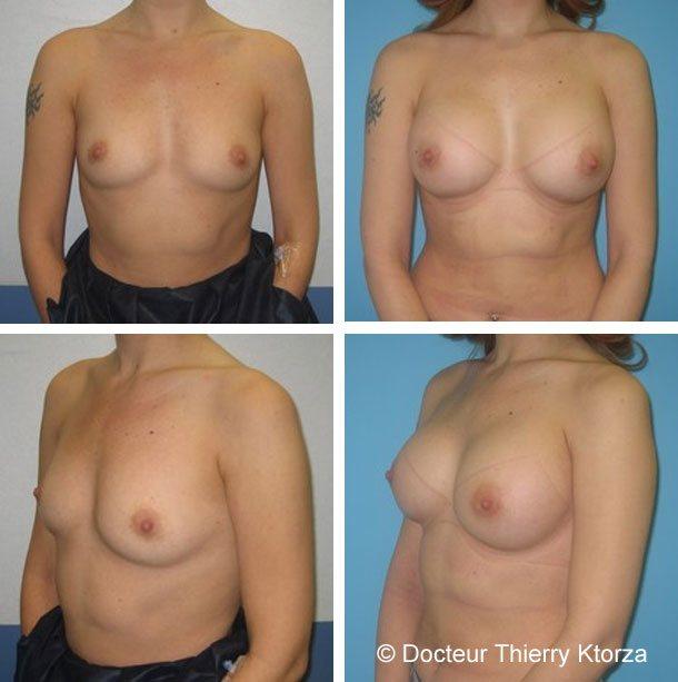 Photo avant et après une augmentation mammaire de 350ml profil haut derrière le muscle et par voie périaréolaire