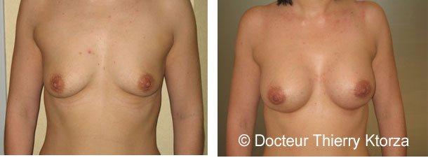 augmentation-mammaire-avant-apres-implants-275ml-seins-ptoses