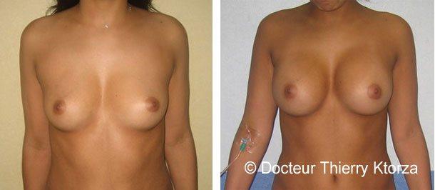 Augmentation mammaire par prothèses mammaires de 300cc par voie axillaire en arrière du muscle