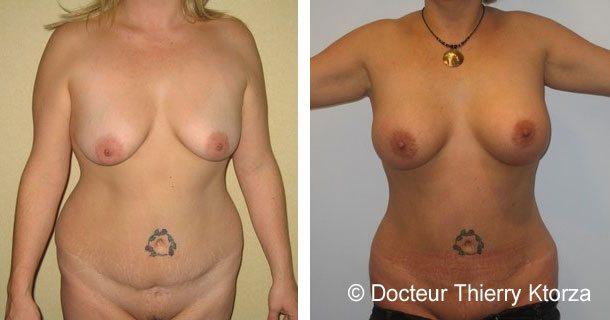 Augmentation mammaire par prothèse mammaire de 350ml en avant du  muscle sur des seins tombant