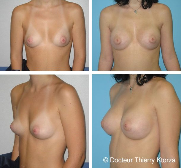 augmentation-mammaire-avant-apres-implants-300ml-devant-muscle