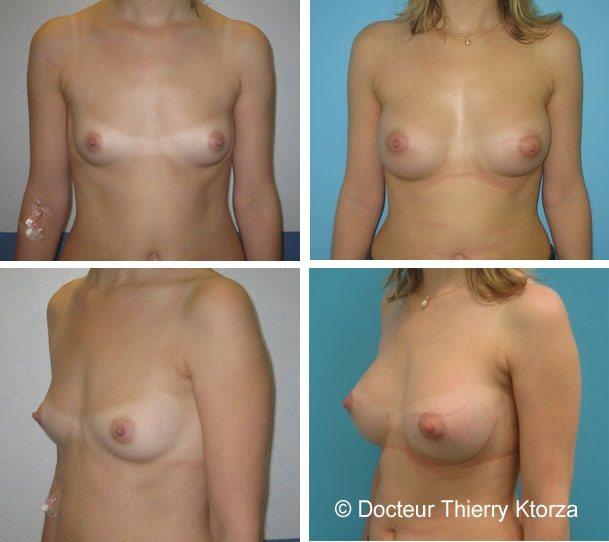 Augmentation mammaires par prothèses mammaires posées en retropectoral de 300ml