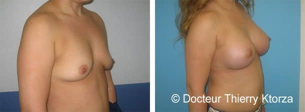 augmentation-mammaire-avant-apres-implants-400ml-ptose