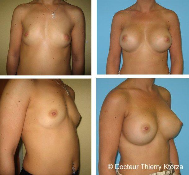 augmentation-mammaire-avant-apres-implants-450ml