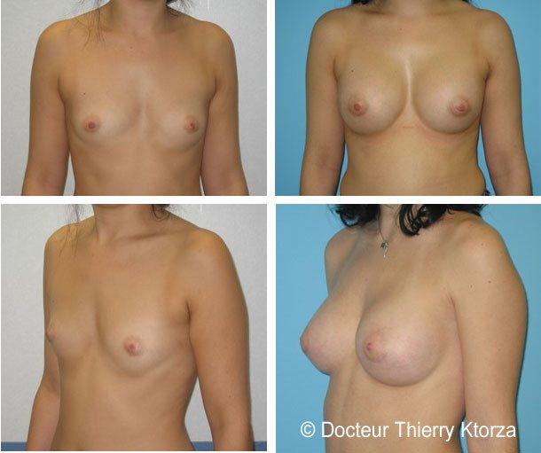 Photo avant et après une augmentation mammaire de 350ml sur sein de droite et 300ml sur sein de gauche