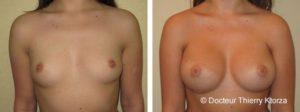 Photo avant et après une augmentation mammaire