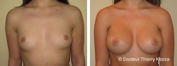 Photo avant après une intervention pour une augmentation mammaire