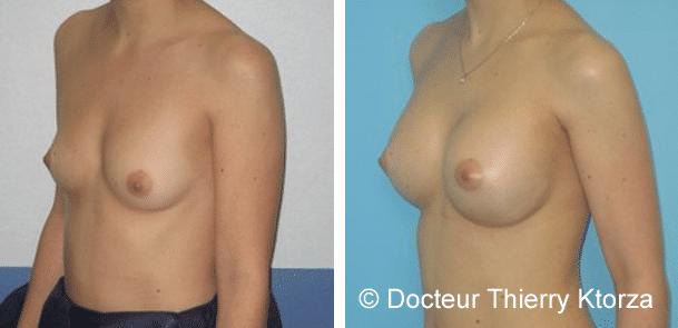 Cicatrices sous les bras lors d'une augmentation mammaire