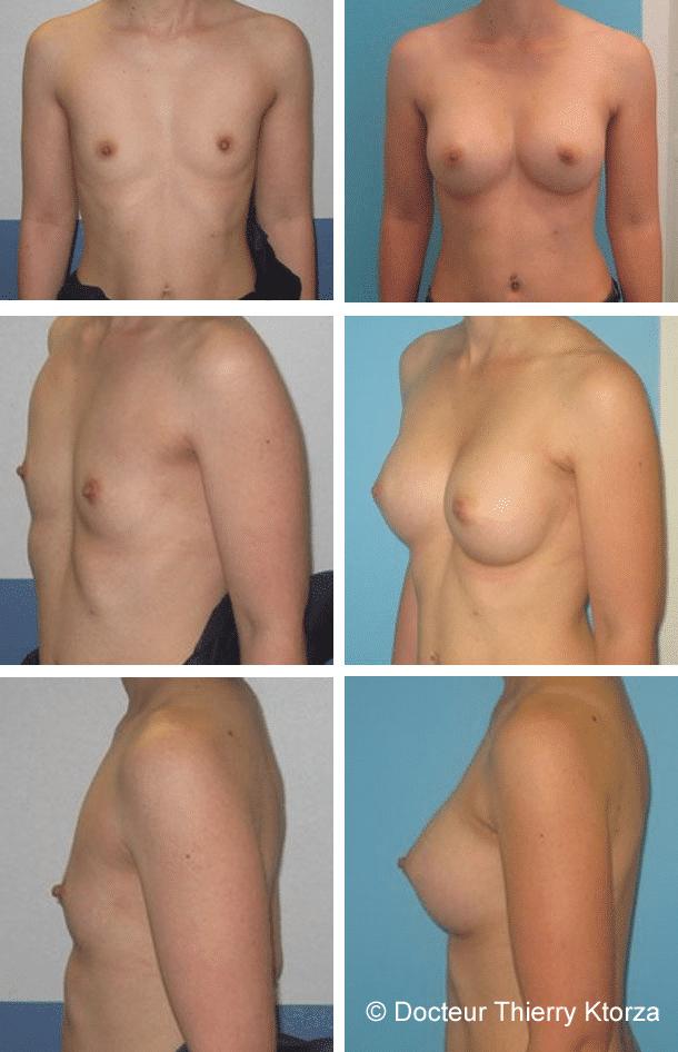 Photo avant et après une augmentation mammaire 350cc par voie derrière le muscle pectoral