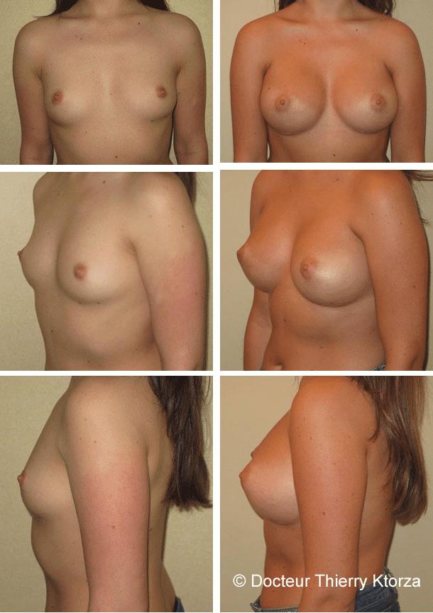 Photo d'une augmentation mammaire dual plan 350cc avant après