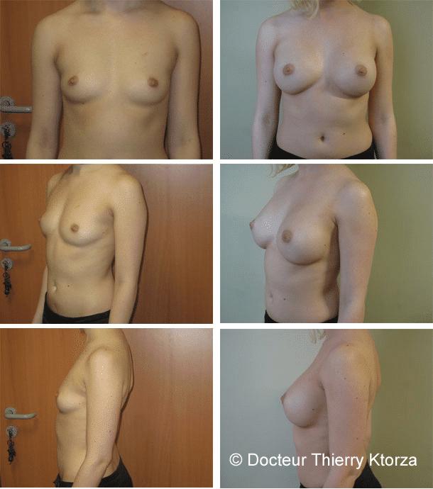 Photo d'une augmentation mammaire avec implants mammaires de 300cc posés par voie sous mammaire et en dual plan avant après