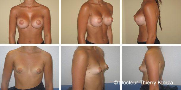 Augmentation mammaire en dual plan