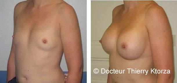 Photo d'une augmentation mammaire de 300CC