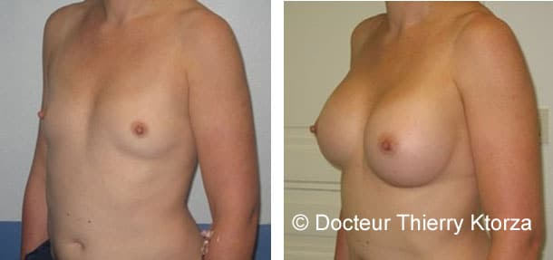augmentation-mammaire-implants-300-cc