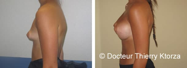 augmentation-mammaire-implants-335CC-seins-tubereux