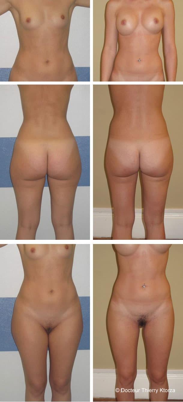 Deux interventions esthétiques en même temps (liposucccion et augmentation mammaire)