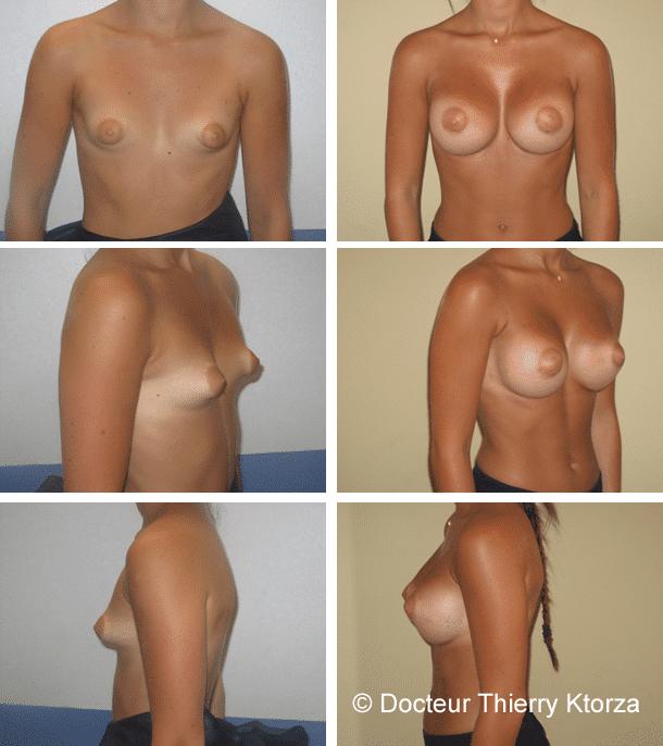 Photos avant et après une augmentation mammaire sur seins tubéreux
