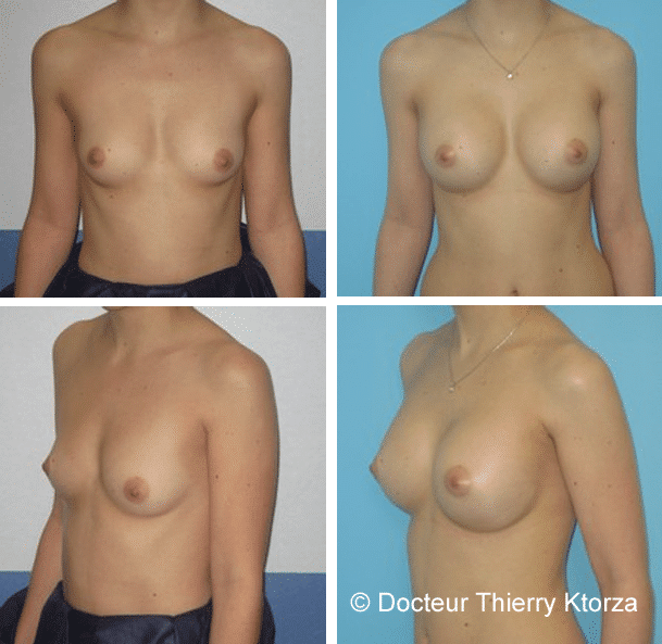 Photo avant et après une augmentation mammaire par implants mammaires de 325cc profil modéré en passant sous les bras et derrière le muscle