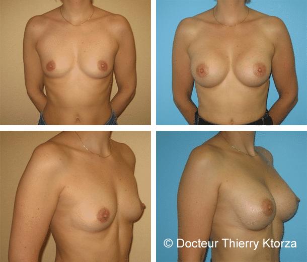 Photo d'une augmentation mammaire par implants mammaires 300cc profil modéré par voie sous mammaire