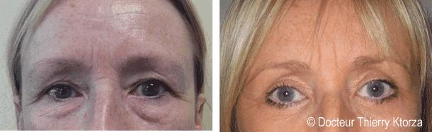 Chirurgie des paupières supérieures et inférieures chez une femme de 58 ans
