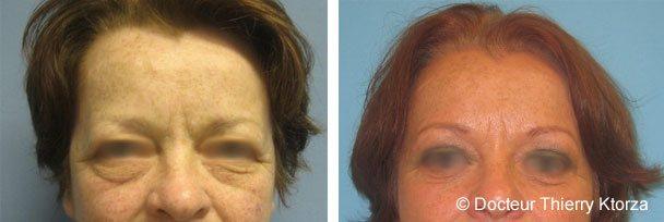 Photo d'une avant et après une blépharoplastie