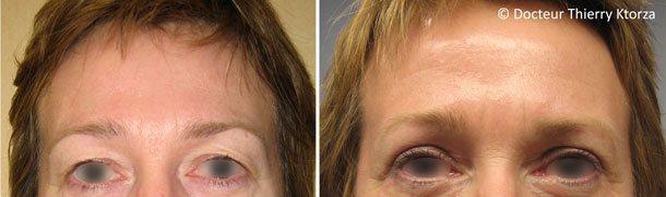Photo avant et après une blépharoplastie par le Docteur Thierry Ktorza