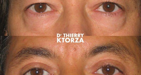 Photos avant et après une blépharoplastie