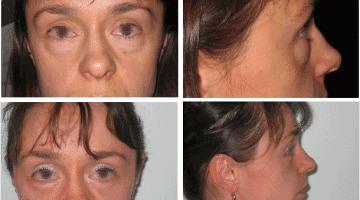 Photo avant et après une chirurgie des paupières chez une jeune patiente de 32 ans avec des poches sous les yeux