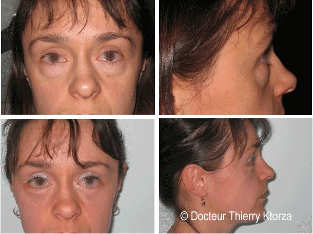 Blépharoplastie inférieure chez une jeune patiente de 32 ans avec des poches sous les yeux