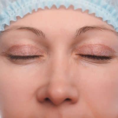 Photo d'une blépharoplastie ou chirurgie des paupières