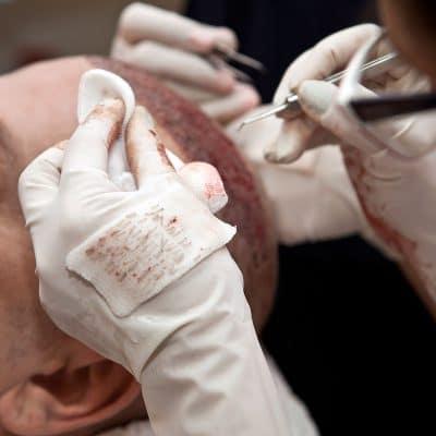 Photo d'une intervention sur un patient pour une greffe de cheveux