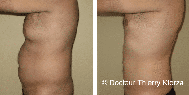 La chirurgie esthétique pour homme en forte croissance