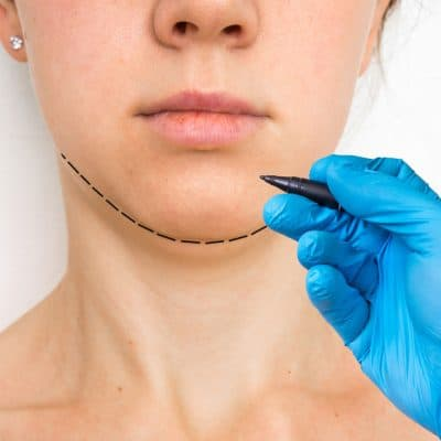 Photo d'une lipoaspiration du visage