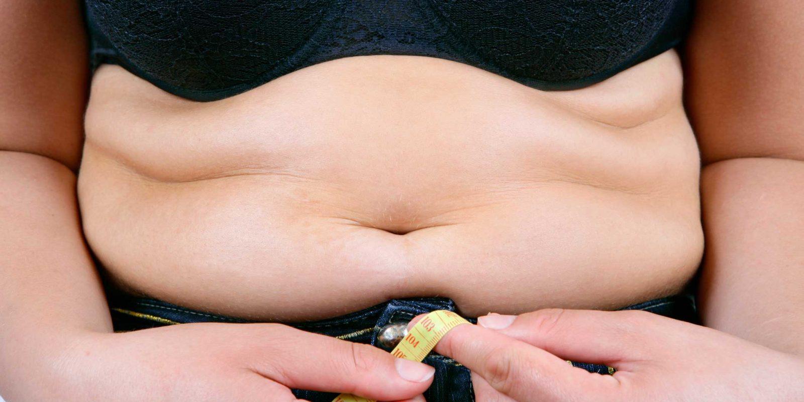 Plastie Abdominale (Abdominoplastie)