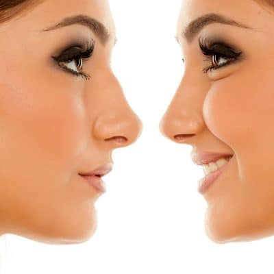 Photo d'une rhinoplastie