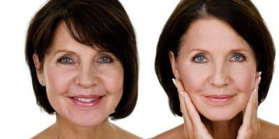 La chirurgie esthétique : un sujet de moins en moins tabou 1