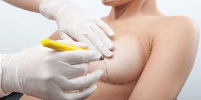 Chirurgie mammaire : entre luxe et nécessité 1