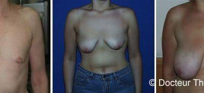 Chirurgie mammaire et prise en charge de la sécurité sociale 2