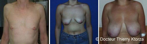 Chirurgie mammaire et prise en charge de la sécurité sociale