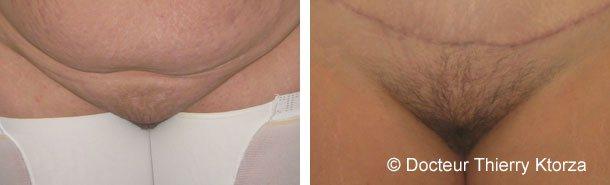 Chirurgie du puvis (mont de vénus)