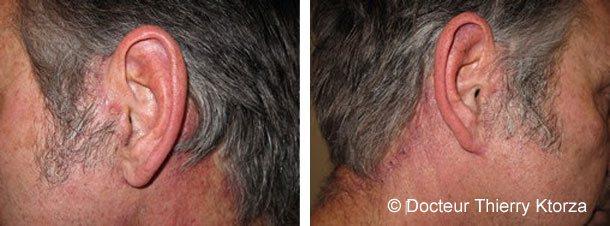 Cicatrices après un lifting cervicofacial chez l'homme