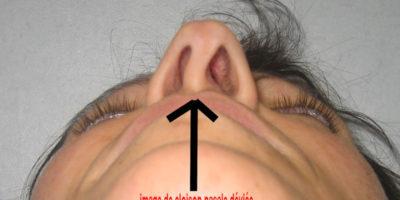 Cloison nasale déviée : les solutions